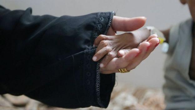 Criança subnutrida pega na mão da médica
