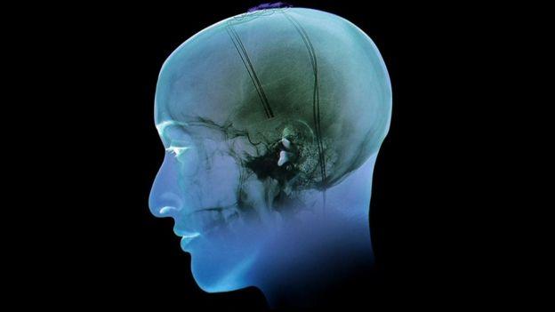 Exame de cérebro