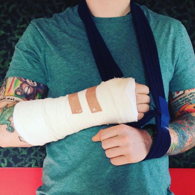 Ed Sheeran's arm