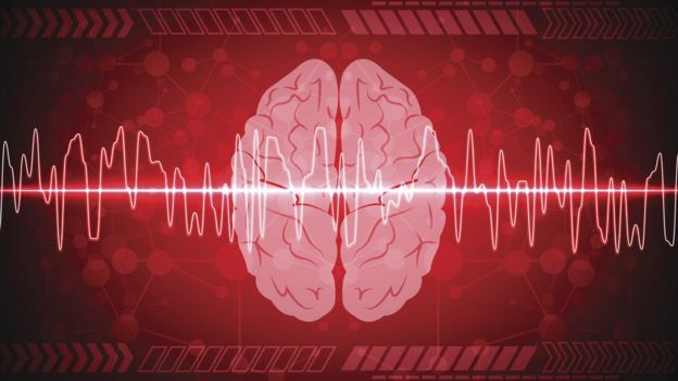 Imagen digital de un cerebro