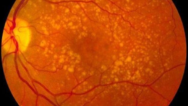 Globo ocular con degeneración macular