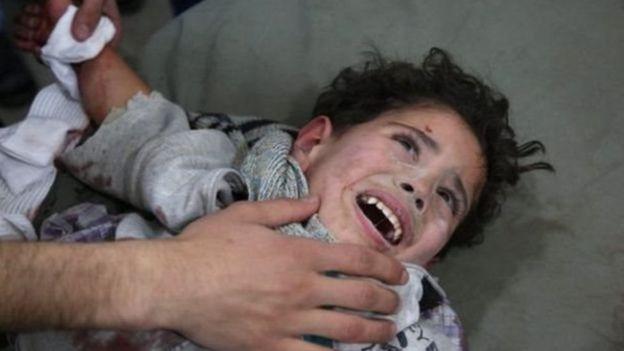 عدد القتلى في الغوطة الشرقية ارتفع منذ يوم الأحد ليصل إلى 403 قتلى