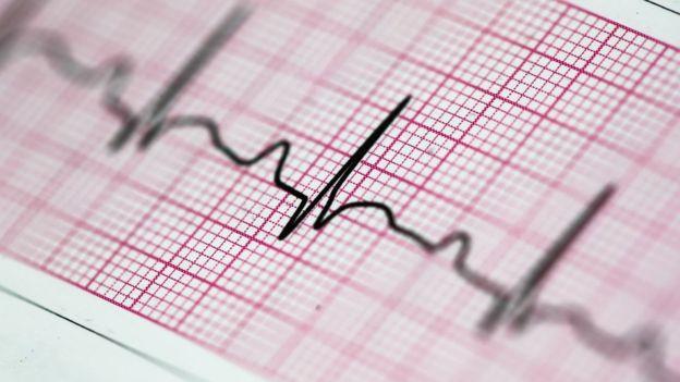 EKG izi