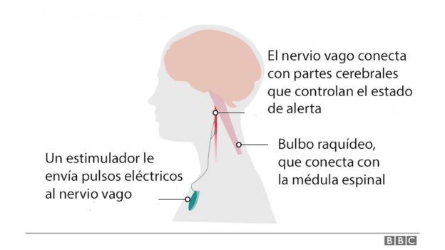 Ilustración de cómo funciona la terapia