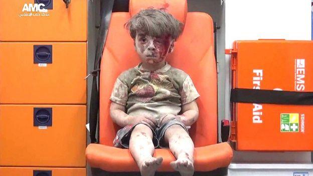 Resultado de imagen para niño bombardeo alepo
