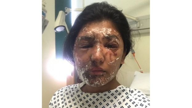 Resham Khan with facial burns