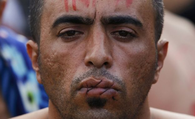 Migrant with lips sewn together