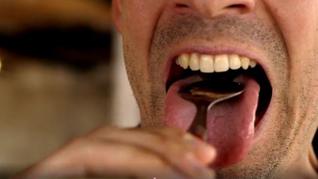 ağız kokusu