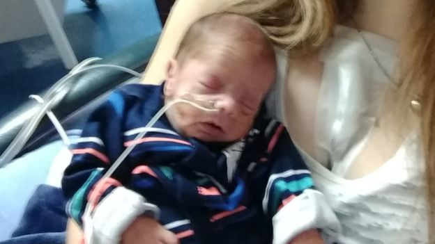 Jaxon Gallagher was born two months premature when his mother had a heart attack while pregnant