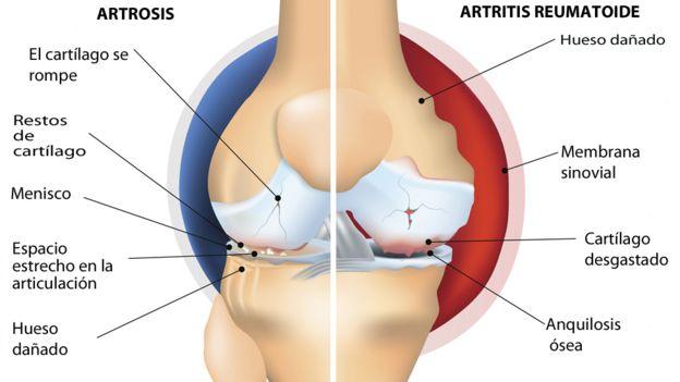 Imagen comparativa entre artrosis y artritis.