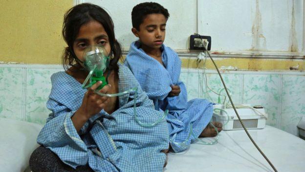 Niños con máscaras de oxígeno