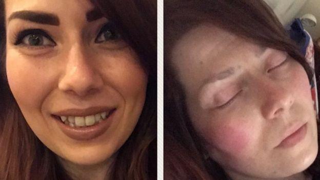 Duas fotos de Alison Morton. Em uma delas, a mulher está bem. Na seguinte, tirada poucas horas depois, está com muita dor.
