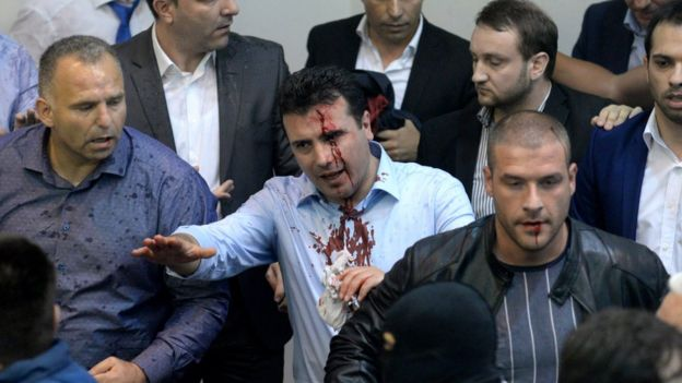 Social Democrat leader Zoran Zaev with blood pouring down his face