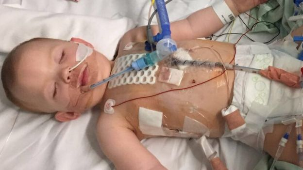 Baby coronary heart surgical procedure cancelled 5 instances by means of Leeds clinic !!! Why ?