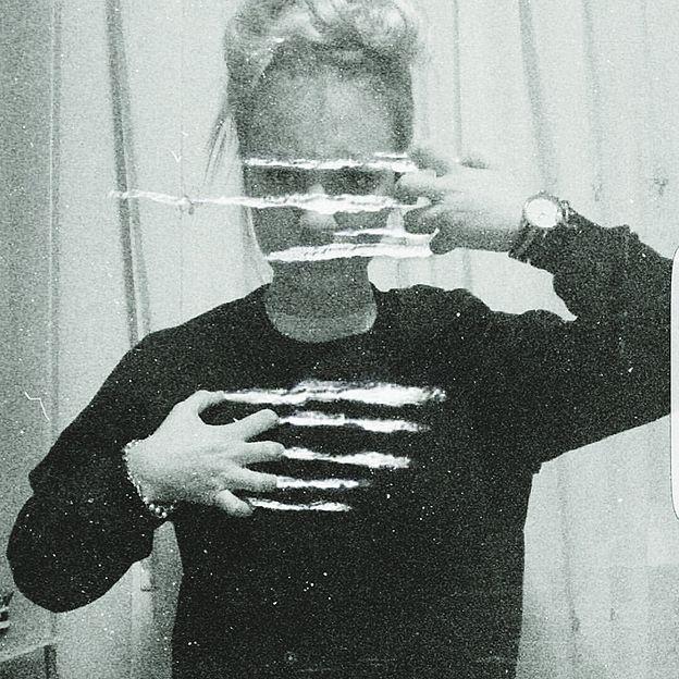 Mujer en foto rascándose