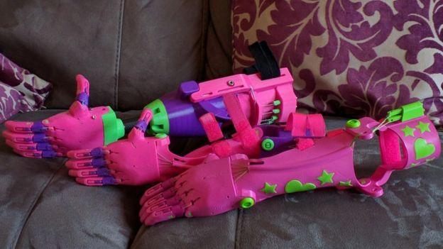Isabella's pink prosthetics