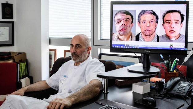 "French medicine professor Laurent Lantieri, a specialist in hand and face transplant, poses next to a screen showing different steps of his patient Jerome Hamon""s surgery"