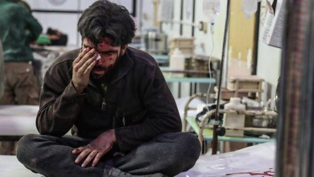 Homem ferido em hospital em Ghouta