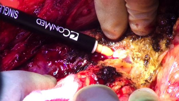 With an electrosurgical pencil begins to separate the liver from the surrounding tissue.