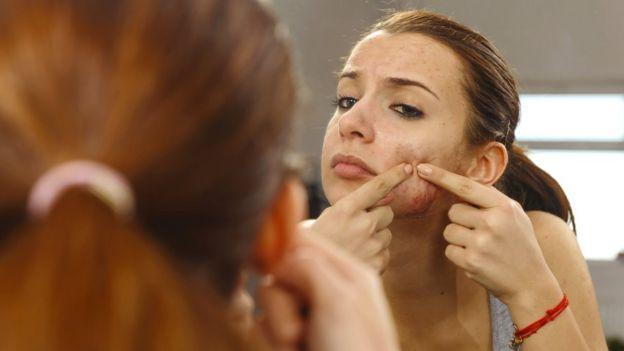 Una joven se explota un grano de la cara.