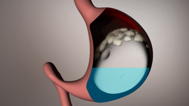Ilustración de cómo funciona el globo gástrico Elipse que no necesita endoscopia