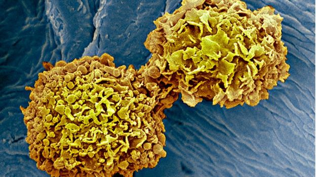 Cancer Blood Test 'enormously exciting'. Image copyright: SCIENCE PHOTO LIBRARY