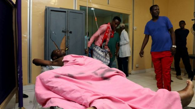 A wounded civilian receives medical treatment at the Madina Hospital after he was injured during an explosion near the presidential palace in Mogadishu, Somalia, 23 February 2018