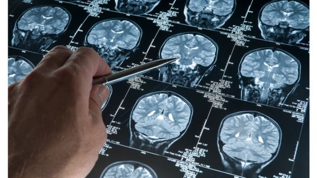 Imagem de exame de imagem de cérebro