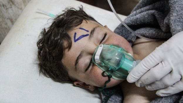 Child being treated in Syria