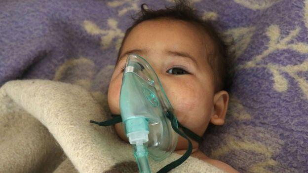 طفل يعالج من أقتحام كيماوي في خان شيخون عام 2017