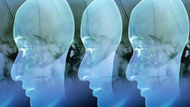 Ilustración de una cabeza duplicada.