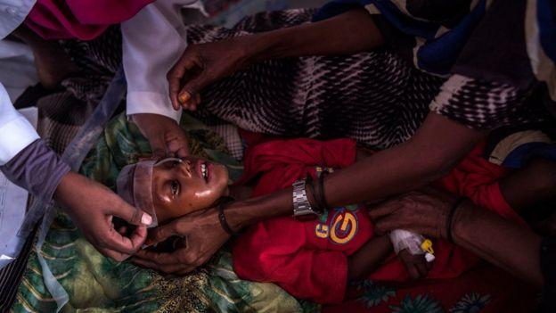 Un niño con desnutrición en Somalia es atendido por médicos