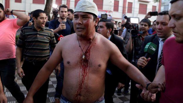 Manifestante lesionado