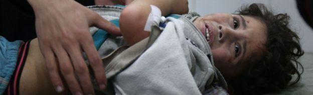 Criança síria ferida