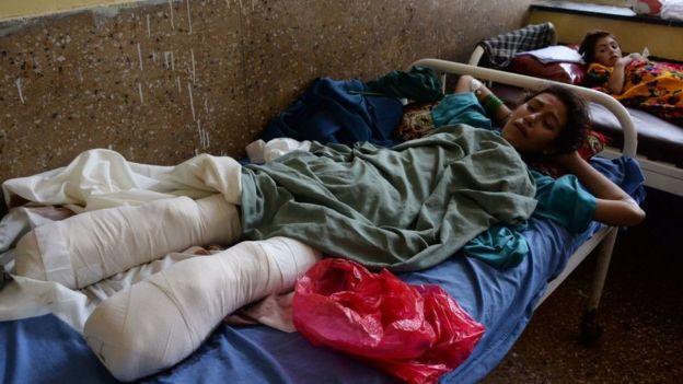 فتاة أفغانية مصابة