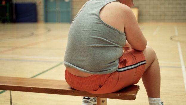 تعداد کودکان و نوجوانان مبتلا به چاقی 'ده برابر شده است'