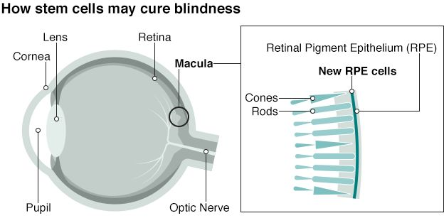 Graphic: How stem cells may cure blindness