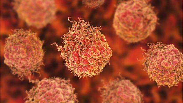 سرطان پروستات شایعترین سرطان در میان مردان بریتانیا است