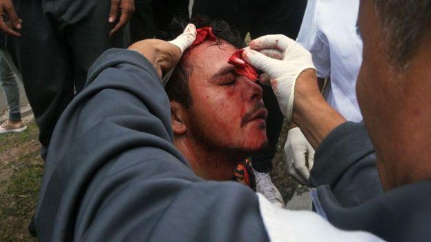 Un herido en protestas en Honduras.