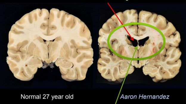 Cerebro de Aaron Hernandez. (Foto: Boston University)