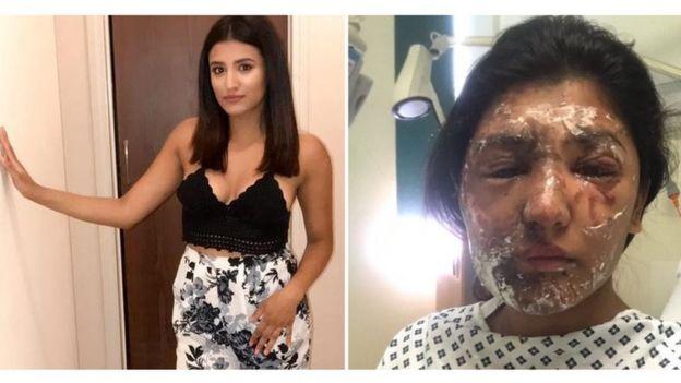 Resham Khan antes e depois do ataque