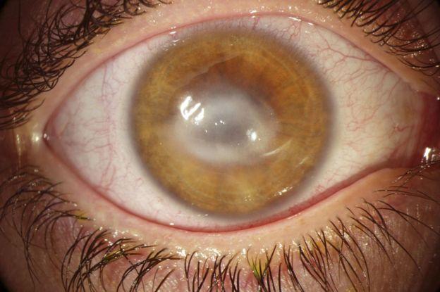 Un ojo con queratitis.