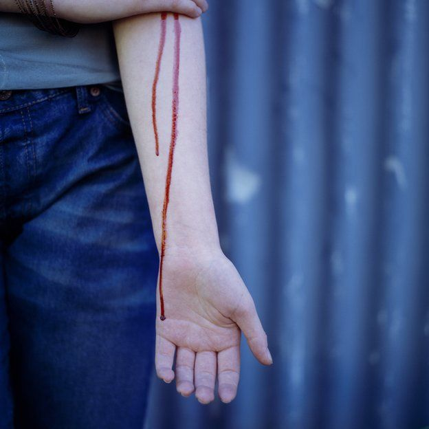 sangre corriendo por brazo de chica