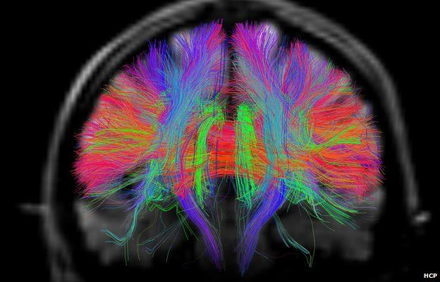 scans reveal intricate brain wiring bbc news cingulum context