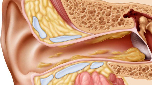 Secretion secrets things you didnt know about ear wax bbc news the cul de sac of the ear canal ccuart Images