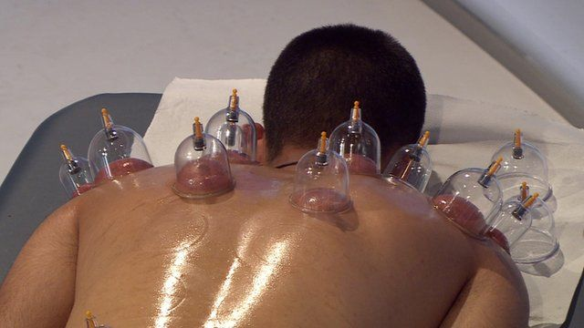 Man undergoing cupping