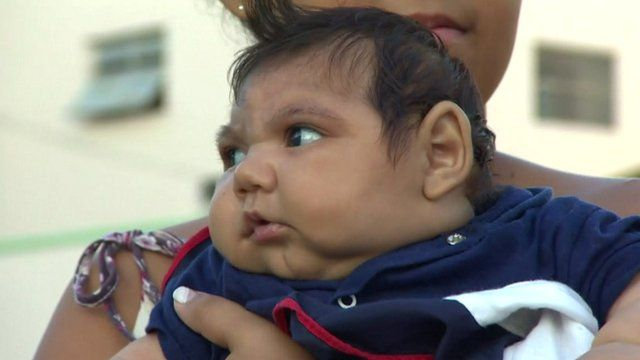 Baby in Brazil with microcephaly