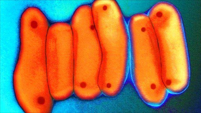 TB bacteria under microscope