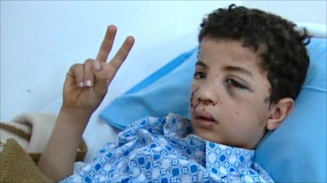 Injured boy in hospital bed in Benghazi