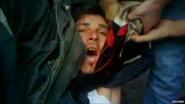 Injured protester